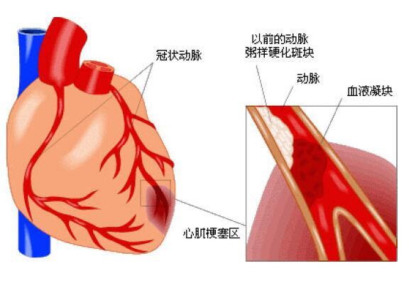 冠状动脉粥样硬化
