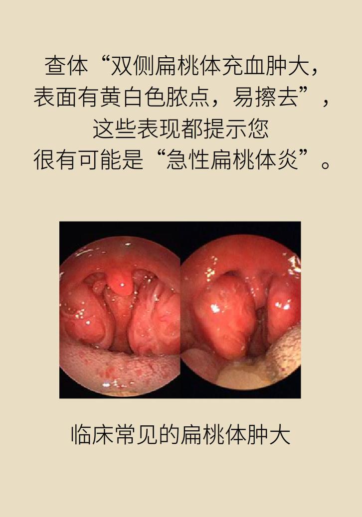 单侧扁桃体肿大更凶险!谨防恶性肿瘤